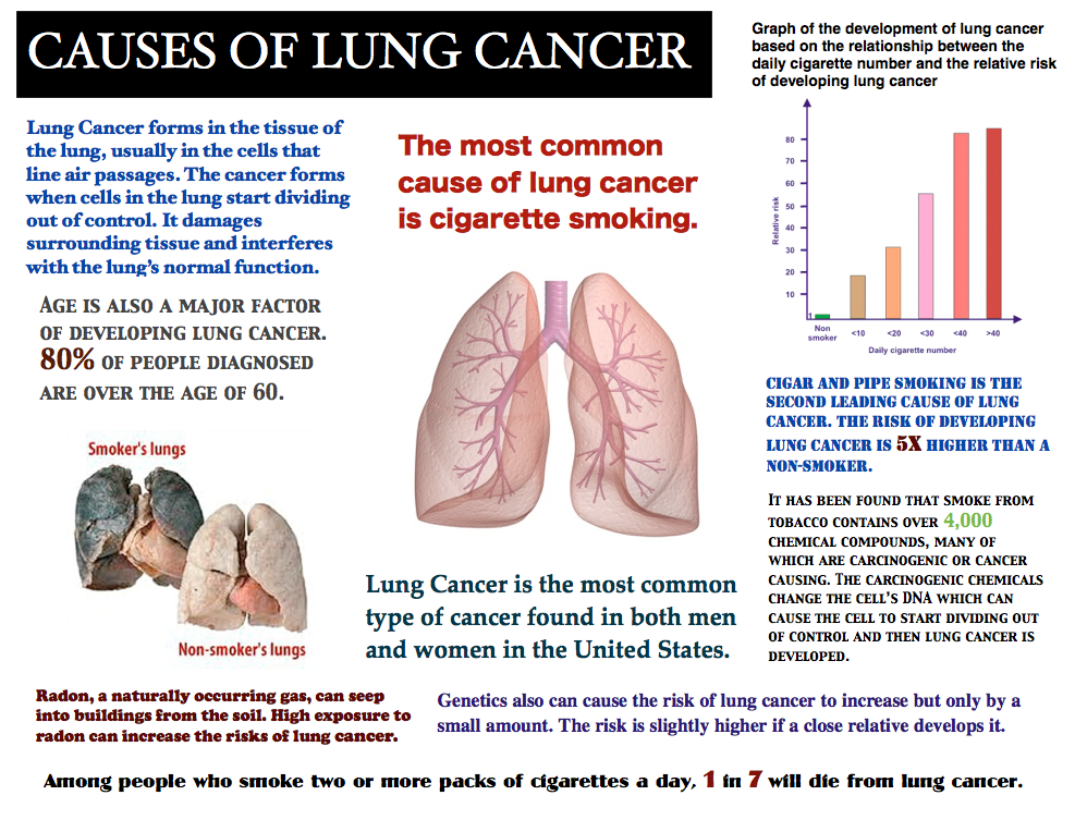 Image Result For Signs Of Lung Cancer In Men